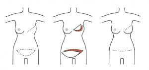 reconstrução da mama 2