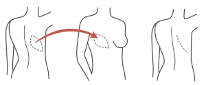 reconstrução da mama 1