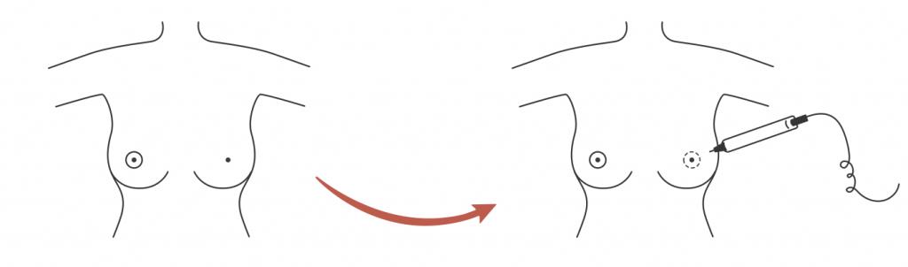 micropigmentação mamária